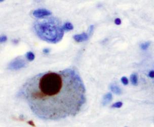 Тельце Леви, состоящее из альфа-синуклеина